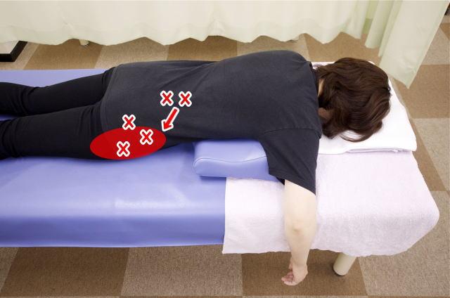 股関節痛の原因になる筋肉2